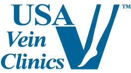 usa-vein-clinics