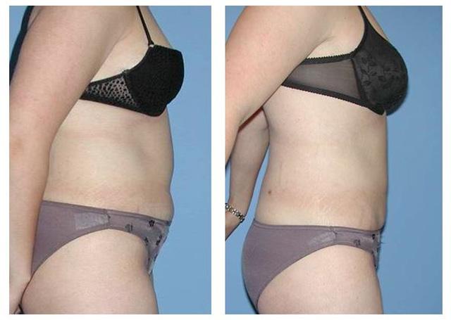 liposuction drgutowski.com