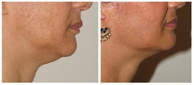skin tightening with Ulthera drgutowski.com